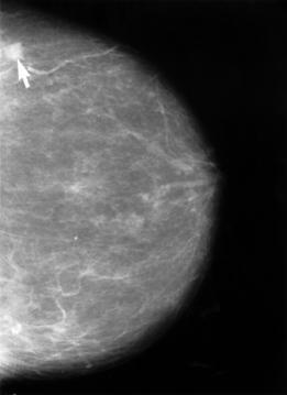 Mammogram showing breast cancer 世界中のランドマークがピンク色に染まる!理由はピンクリボンキャンペーン!