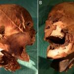 王の頭蓋骨は偽物?衝撃的な論文発表!