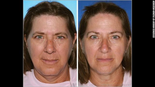 01twins smoking horizontal gallery 喫煙者と非喫煙者の双子の顔を検証。喫煙者は一層老化して見えることが判明!