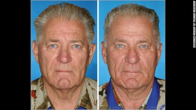 02 twins smoking horizontal gallery 喫煙者と非喫煙者の双子の顔を検証。喫煙者は一層老化して見えることが判明!