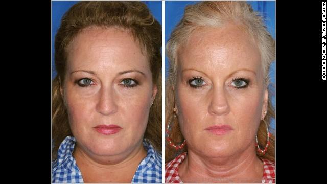 03 twins smoking horizontal gallery 喫煙者と非喫煙者の双子の顔を検証。喫煙者は一層老化して見えることが判明!