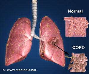 COPD1 COPDが日本に深刻な被害を!2020年には多くの人に猛威を振るう可能性!