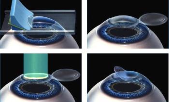 microkeratome lasik レーシック手術後の異変を40%の患者が訴える。消費者庁が注意喚起する事態に!
