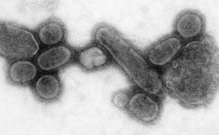 Reconstructed Spanish Flu Virus インフルエンザが流行の兆しを見せる!2014年は季節性インフルエンザ3種類がどれも流行の可能性あり!