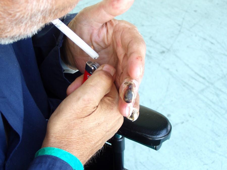 Upper burgers1 900x675 喫煙が引き金となるビュルガー病(バージャー病)。患者が途上国で増加する事態に。
