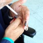喫煙が引き金となるビュルガー病(バージャー病)。患者が途上国で増加する事態に。