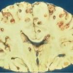 脳に寄生する有鈎嚢虫!稀に脳を穴だらけに!
