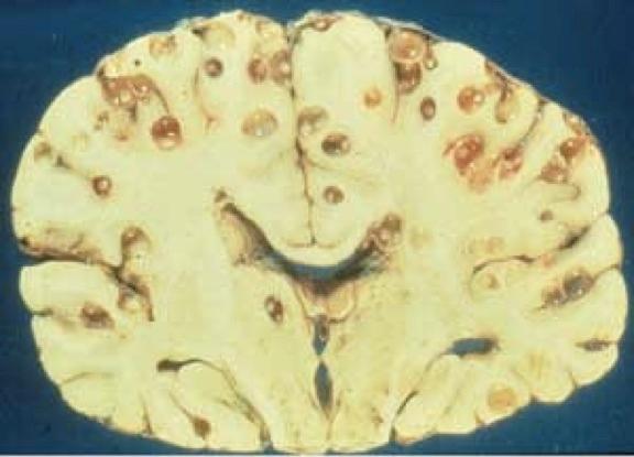 t solium cysticerci in brain1334850985884 脳に寄生する有鈎嚢虫!稀に脳を穴だらけに!