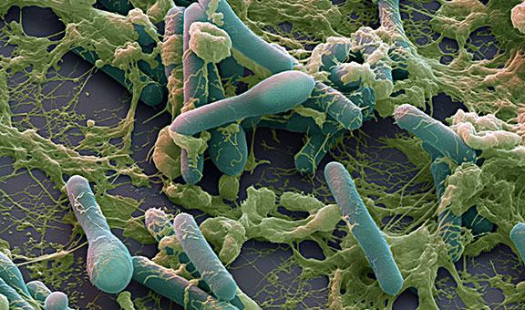 Clostridium botulinum sem ボツリヌス菌、自然界最強の細菌!