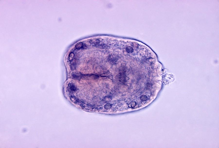 Echinococcus granulosus scolex 900x611 エキノコックスが本州で広がりを見せる!