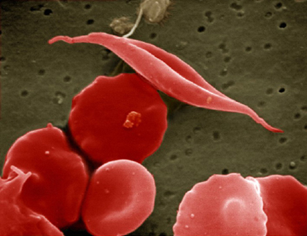 14307 蚊を遺伝子操作!95%を雄にして後に全滅へ!