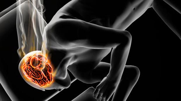 burnt out brain smoke2 hgrebe 800 喫煙で認知症のリスクが倍増か。