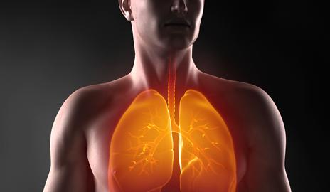 lungs diseases 夏カビ肺炎、正式名称夏型過敏性肺炎が発生し始める。