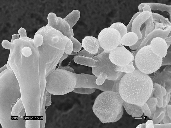 new killer airborne fungus 19371 600x450 クリプトコッカス・ガッディ、人体に付着するカビ。
