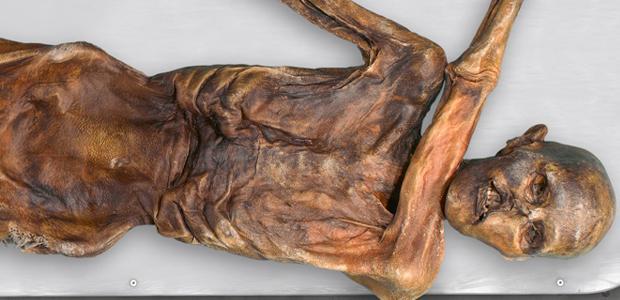 Otzi3 エッツィ、5300年前の不思議なミイラ。