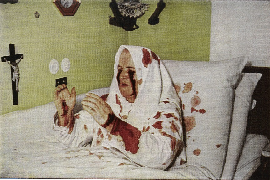 Therese Neumann von Konnersreuth31 聖痕、体に浮かび上がる不思議な傷。