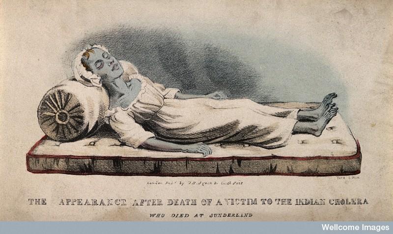 cholera victim at sunderland 1832 コレラがガーナで蔓延!エボラに続いて流行拡大が懸念される事態に。