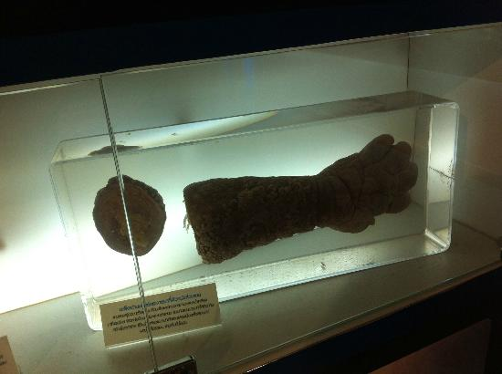 siriraj medical museum シリラート死体博物館!日本人にも大人気の観光地!