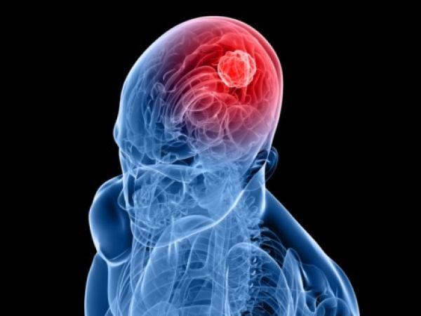 braintumour 600x450 携帯電話の電磁波は体に有害?アルツハイマーに対する予防効果という指摘も。