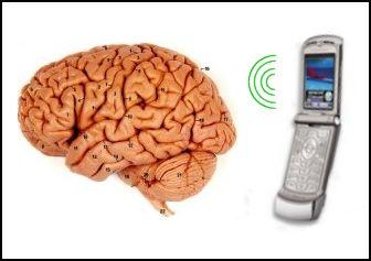 cell phone brain cancer 携帯電話の電磁波は体に有害?アルツハイマーに対する予防効果という指摘も。