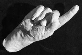 image009 霊体物質化実験(クルスキーの手形)。幽霊の型を取ることに成功していたという記録。