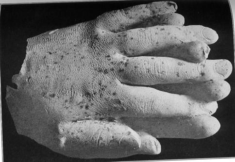 image011 e1409904362470 霊体物質化実験(クルスキーの手形)。幽霊の型を取ることに成功していたという記録。