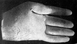 image013 e1409904377470 霊体物質化実験(クルスキーの手形)。幽霊の型を取ることに成功していたという記録。